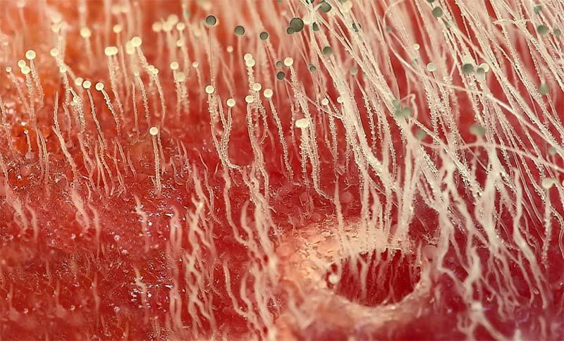 Грибы в организме человека