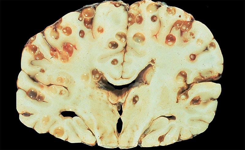 Что такое нейроцистицеркоз