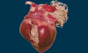 Глисты в сердце человека