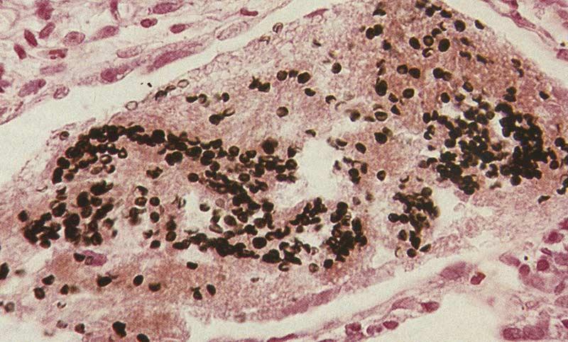 Пневмоцистоз
