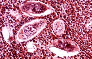 Шистосомоз под микроскопом