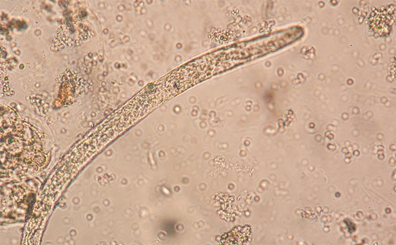 Угрица под микроскопом