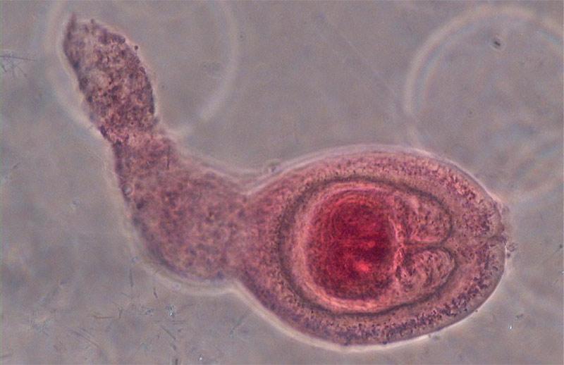 Гименолепидоз