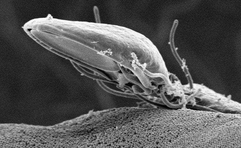 Лямблия под микроскопом