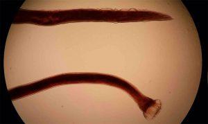 Что такое кривоголовка двенадцатиперстной кишки