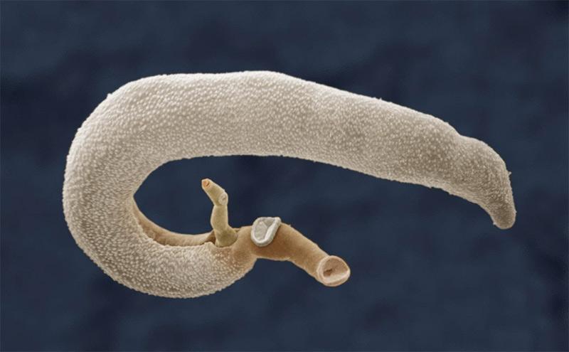 Шистосома Мансони – откуда берется и как лечить