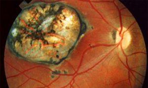 Глисты в глазах у человека