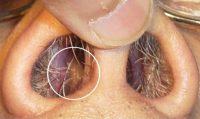 Паразиты и глисты в носу человека