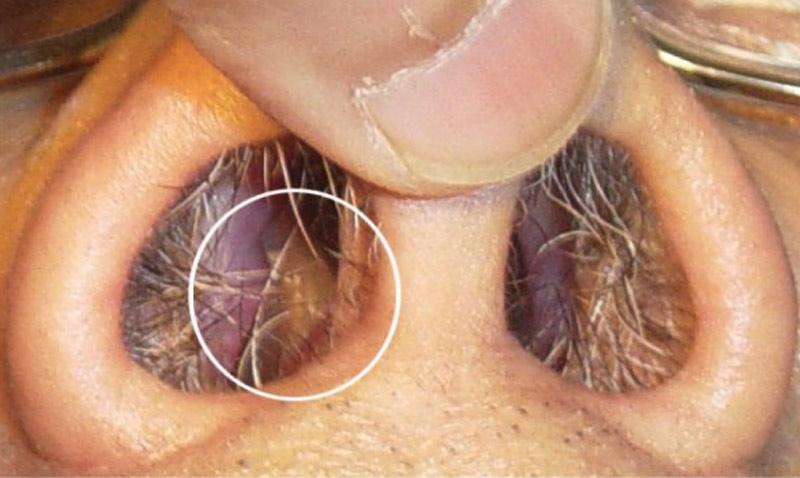 Острицы в носу фото - Про паразитов